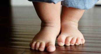 Ребенок ходит на цыпочках: 4 группы причин, лечение, что необходимо делать